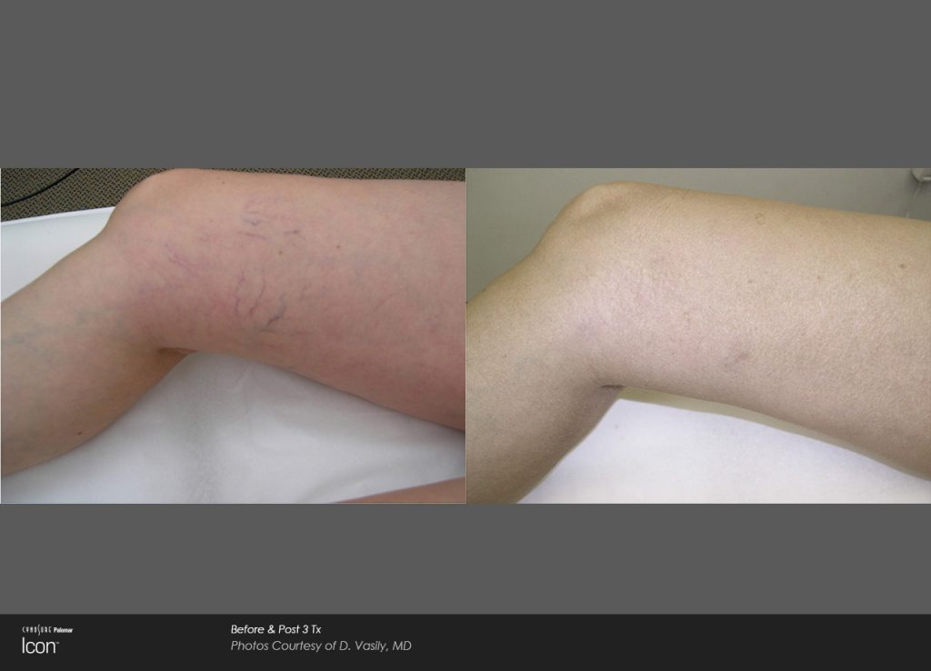 Before and after laser leg vein therapy results